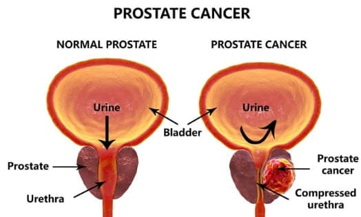 Prostate Cancer Cure And Remedy By Patrick Delves
